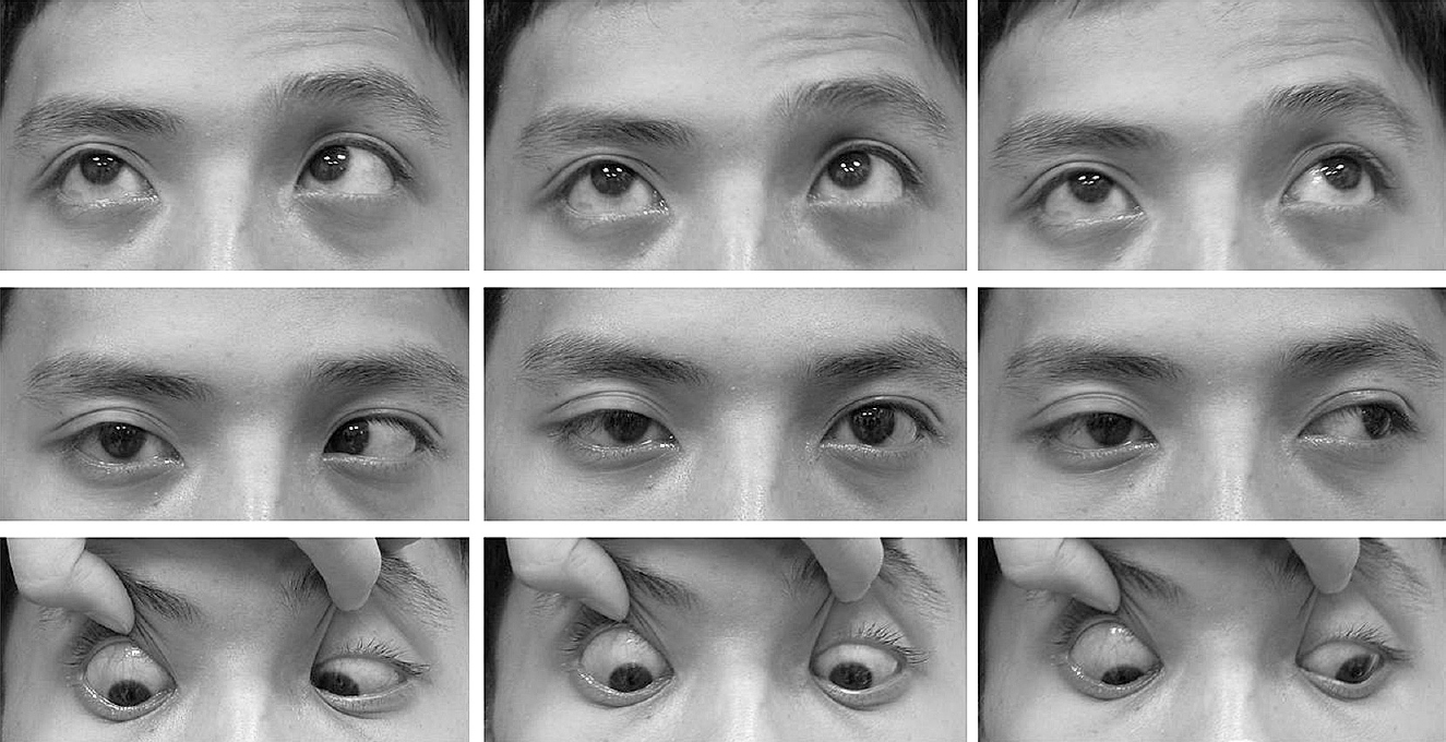 Foville\'s syndrome with ipsilateral internuclear ophthalmoplegia due ...