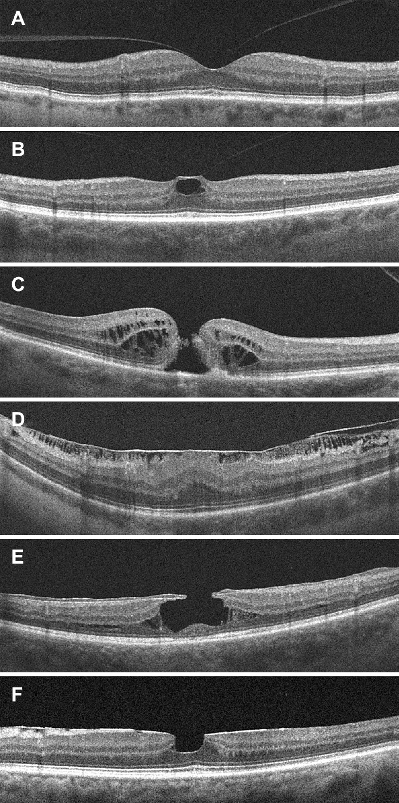 Vitreomacular interface diseases: Diagnosis and management Levison