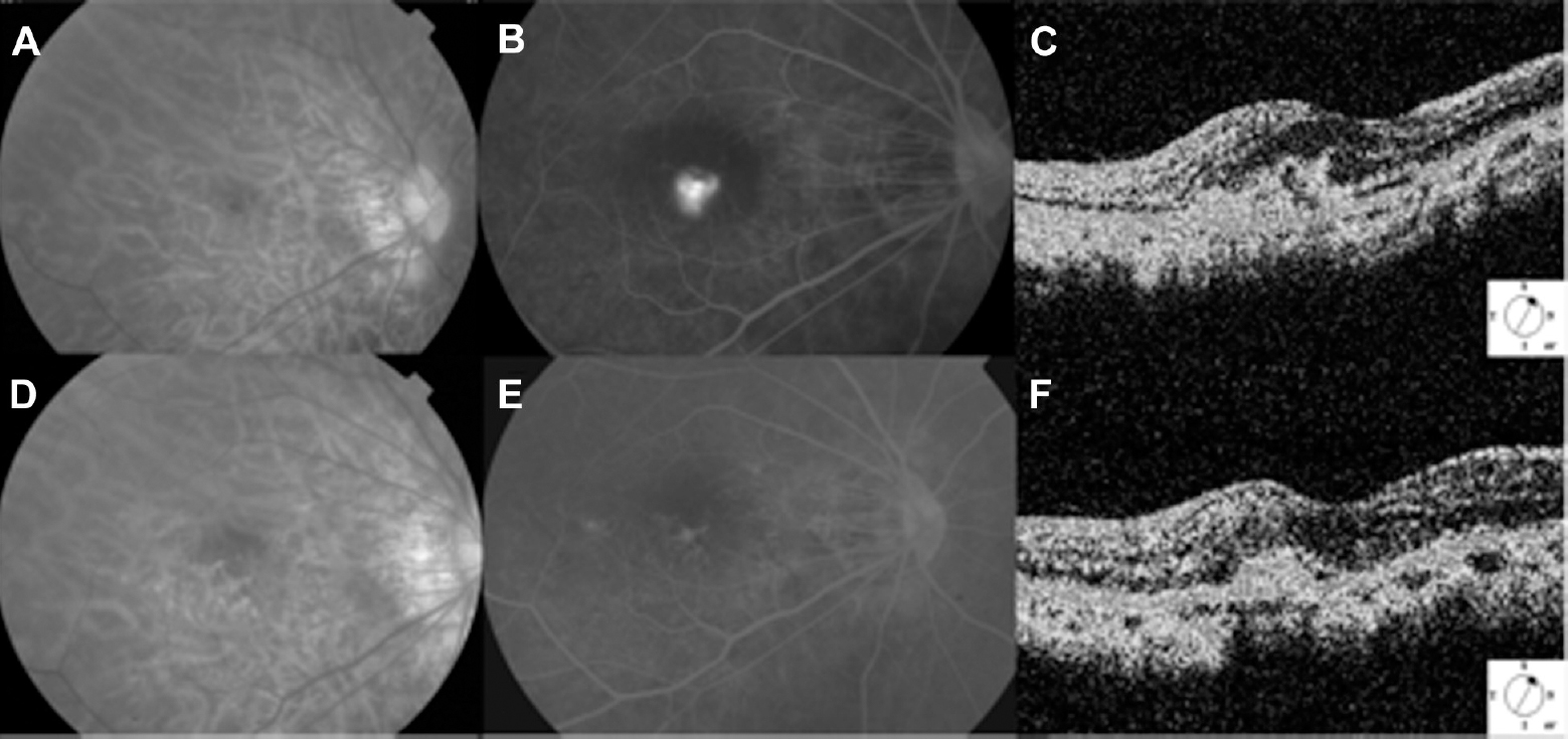 Color Fundus A Before Treatment And D Post B Fluorescein Angiography FA Showed Obvious Dye Leakage