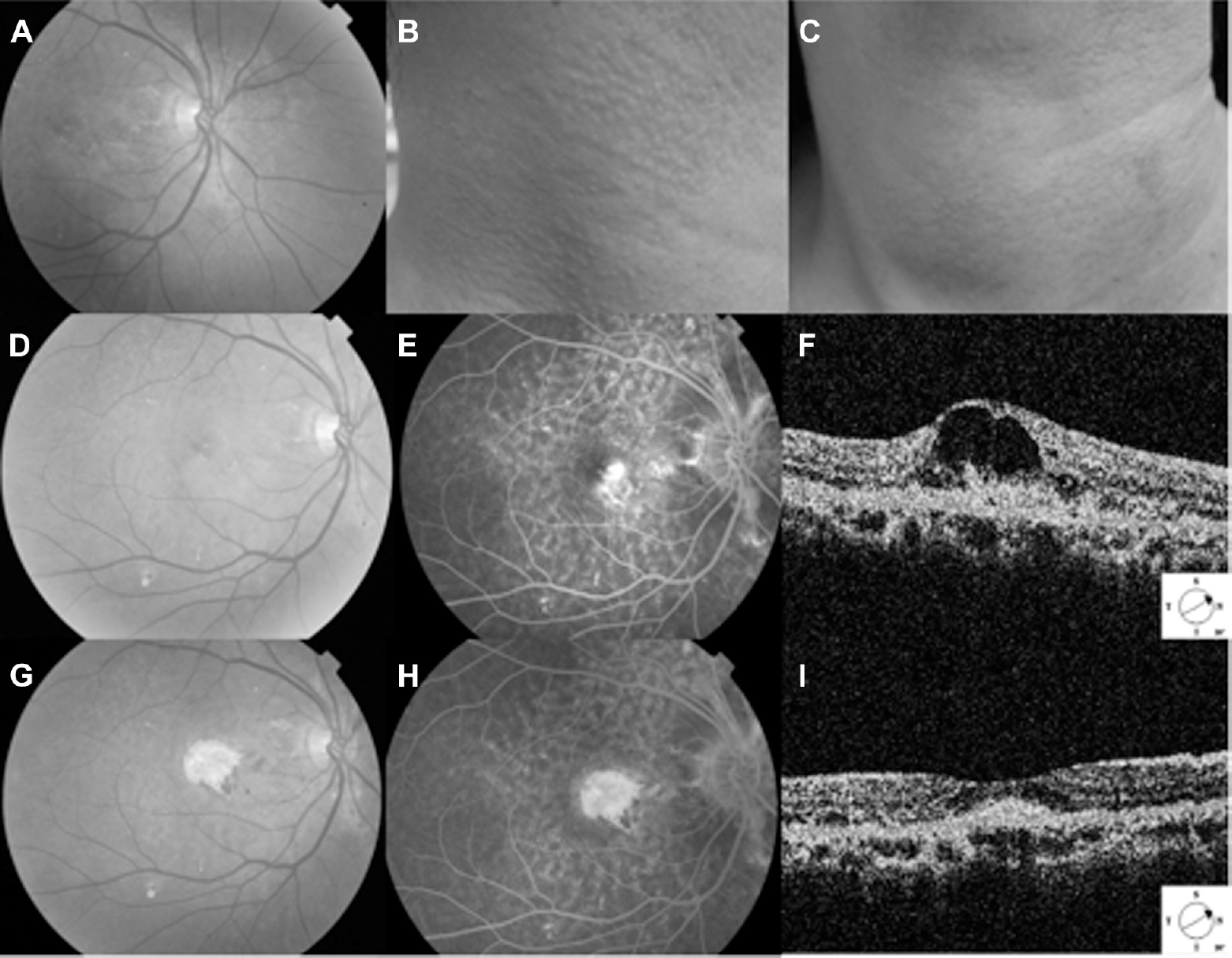 A 50 Year Old Women With Angioid Streaks In Both Eyes For The Right Eye Color Fundus Shows Linear Radial Over Peripapillary Area