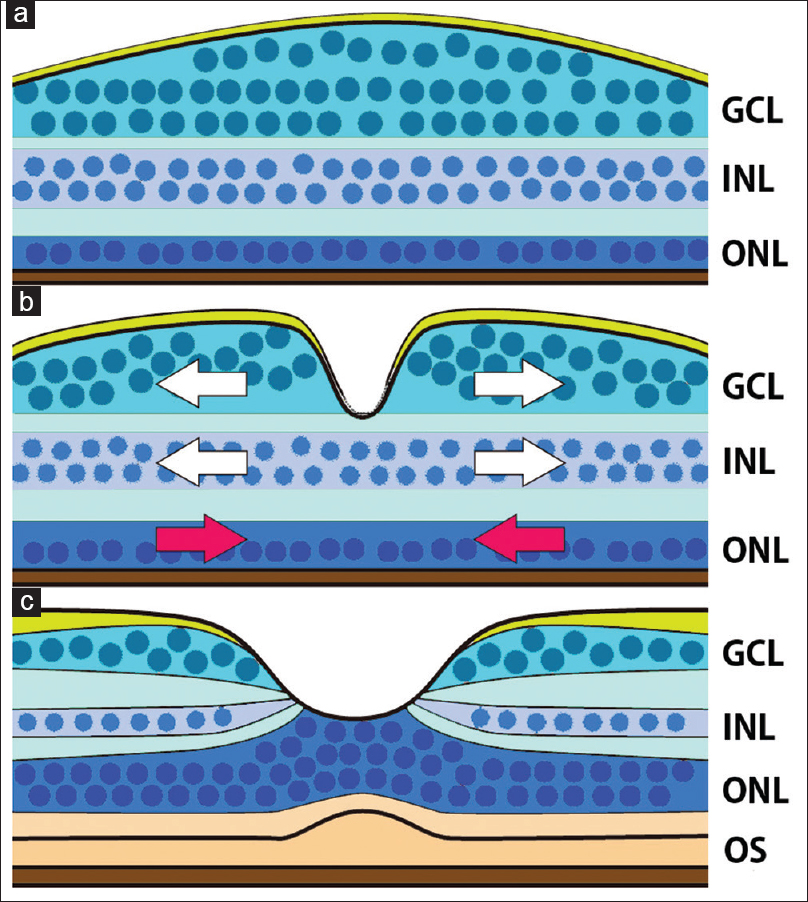 Figure 1: Schematic diagram showing the development of the foveal structure. (a) At the end of the second trimester, a thickened ganglion cell layer is found, however, a foveal pit is not present. The outer nuclear layer is a single-cell layer. (b) A foveal pit forms in the ganglion cell layer and inner nuclear layer. The cells in the ganglion cell layer and inner nuclear layer are displaced centrifugally to form the foveal pit (white arrows), and cone cells in the outer nuclear layer are displace centripetally (red arrows). (c) In the adult retina, the cone cells form a multicellular layer, and the inner and outer segments become prominent. The schema is based on references Springer and Hendrickson<sup>[23]</sup> and Hendrickson<sup>[29]</sup>