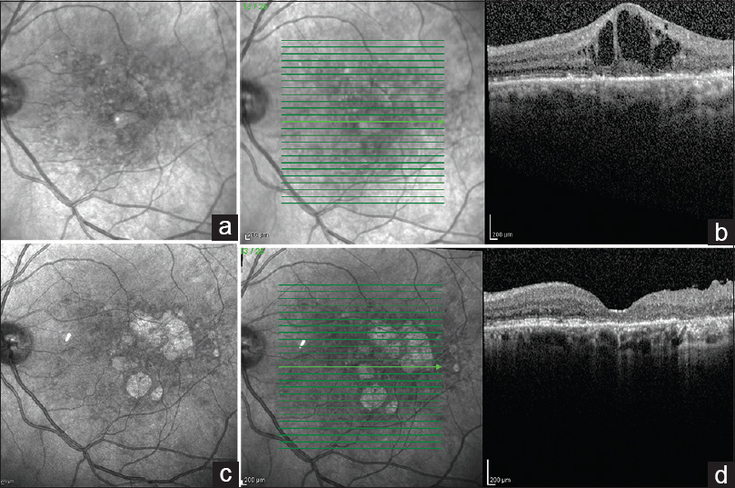 Figure 1: A 56-year-old woman with type 2 diabetes mellitus was diagnosed with center-involved diabetic macular edema in her OS. Her visual acuity at baseline was 20/150. She underwent six consecutive intravitreal injections of 1.25-mg bevacizumab, three intravitreal injections of ranibizumab, macular laser photocoagulation, and two injections of 4 mg of triamcinolone acetonide. Despite these treatments, her diabetic macular edema did not improve. She then underwent pars plana vitrectomy. Her diabetic macular edema resolved, but her visual acuity did not improve. (a) Pre-pars plana vitrectomy infrared reflectance image of the left eye. As this is a confocal image, notice that the image is out of focus. (b) Pre-pars plana vitrectomy spectral domain-optical coherence tomography of the left-eye foveal cut. Notice the intraretinal hyporeflective spaces and the discontinuation of the ellipsoid and external limiting membrane. (c) Post-pars plana vitrectomy infrared reflectance image of the left eye. The diabetic macular edema has resolved. Notice that the image is in focus, and the macular scars from the prior macular laser photocoagulation are clearly in focus. (d) Post-pars plana vitrectomy spectral-domain-optical coherence tomography of the left eye foveal cut. The macula has a normal foveal depression, but the ellipsoid and external limiting membrane are clearly missing