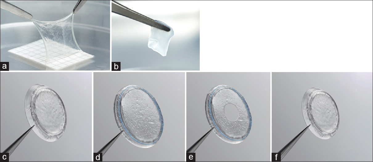Figure 3: Cryopreserved birth tissue products in ophthalmology: (a) Cryopreserved amniotic membrane was the  first birth tissue product on the market. (b) The cryopreserved umbilical cord product (AmnioGuard) was available in 2010. The PROKERA family of devices comprises four models (c-f) of a biologic corneal bandage. (c) The PROKERA is designed such that an amniotic membrane is clipped to a dual polycarbonate ring system, allowing the membrane to act as a biological bandage when in contact with the cornea. (f) PROKERA PLUS model has two amniotic membrane layers, providing extra therapeutic benefit. (d) PROKERA SLIM and (e) PROKERA CLEAR both have a thinner, smaller ring (less plastic), while (e) PROKERA CLEAR also provides central aperture clearance