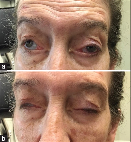 Figure 1: (a) A 44-year-old female with chronic progressive external ophthalmoplegia who has undergone bilateral frontalis suspensions for blepharoptosis with two subsequent tightenings. She requests a third tightening of her slings as progressive levator palpebrae superioris and frontalis weakness has caused recurrent ptosis that occludes her visual axes. (b) Postoperative lagophthalmos due to concurrent orbicularis oculi weakness results in exposure keratopathy, necessitating loosening of her frontalis silicone slings.