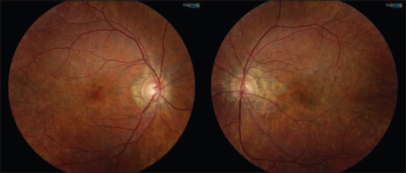 "Figure 3: A 28-year-old female with Kearns–Sayre syndrome who is visually asymptomatic, exhibits mottled retinal hypopigmentation and hyperpigmentation, also known as ""salt-and-pepper"" retinopathy."